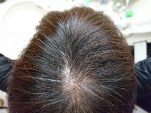 white hair reason